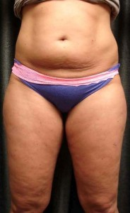 Strong_Cellulite_final comparison after 2 rounds treatment_1B_W