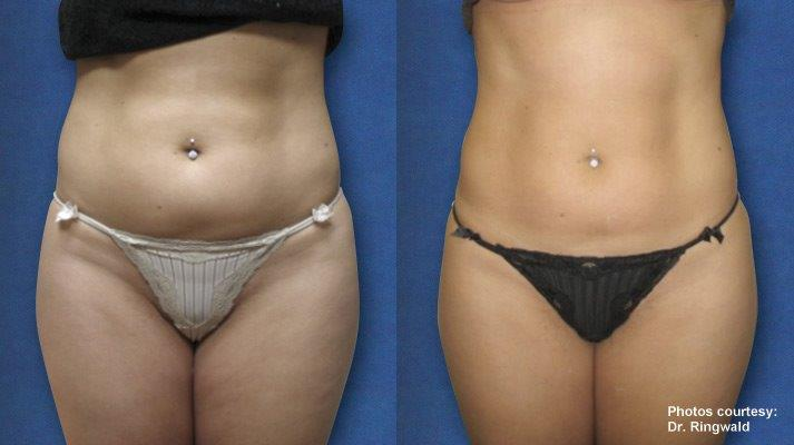 Body Contouring Without Surgical Treatment Verj 250